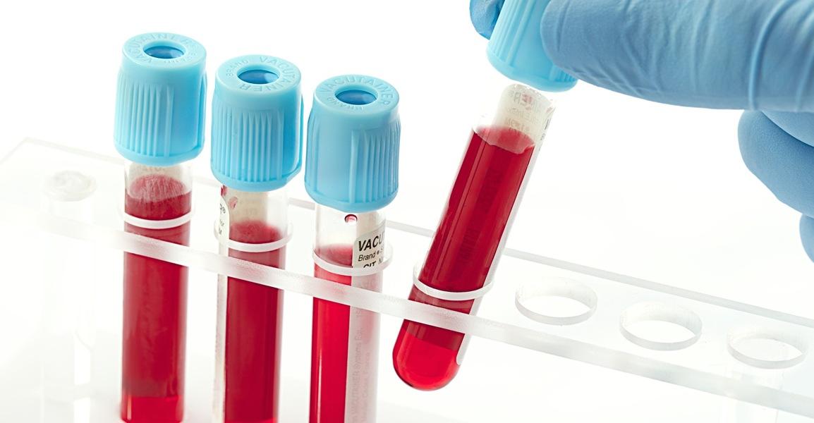 Анализ крови на RW