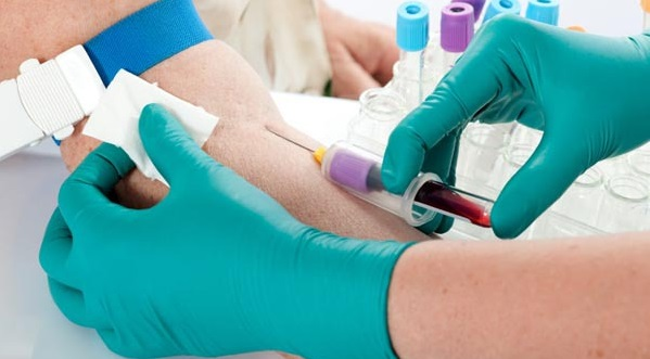Лечение атеросклероза и варикоза нижних конечностей