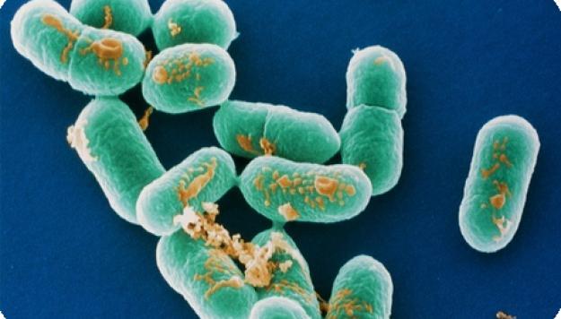 Лабораторная диагностика листериоза